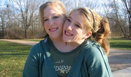 Here's A Story Of The Inspiring Conjoint Twins – Abby And Brittany