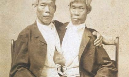 These Facts About The First Ever Siamese Twins Will Take You By Surprise