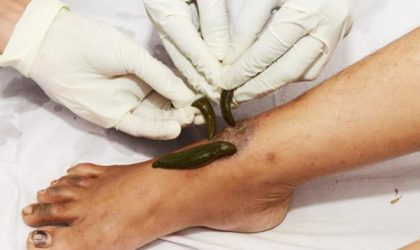 Know About The Quirky Leech Therapy And Its Benefits