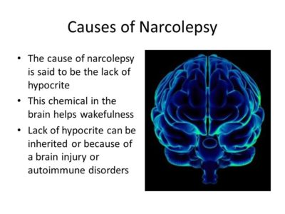 Causes of Narcolepsy