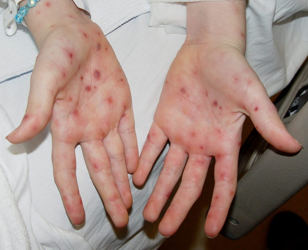 Allergy or infection?