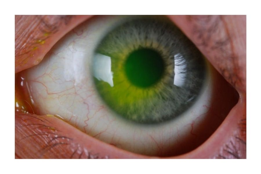 Corneal Flaps May Occur