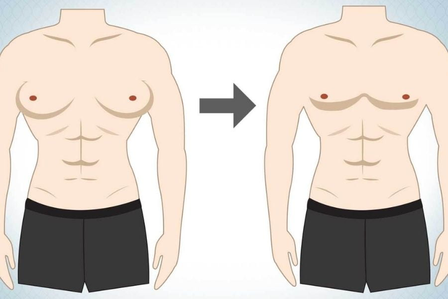 What is the best treatment method for gynecomastia?